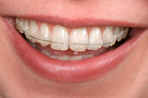 Clear-Orthodontic-Brackets