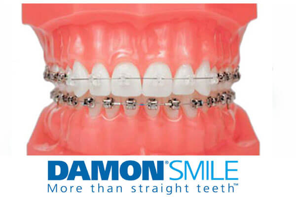 Damon Braces